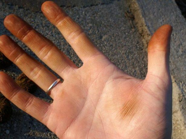 Пятна на руках после чистки грецких орехов